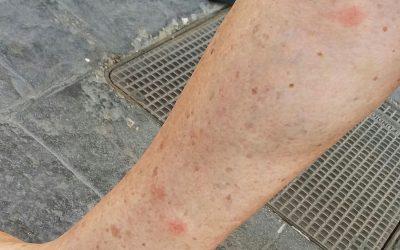 mosquitos en mislata 2